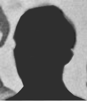 A silhouette of the face of Private Roderick Schneider. Schneider became an expert at driving dog teams during the expedition.